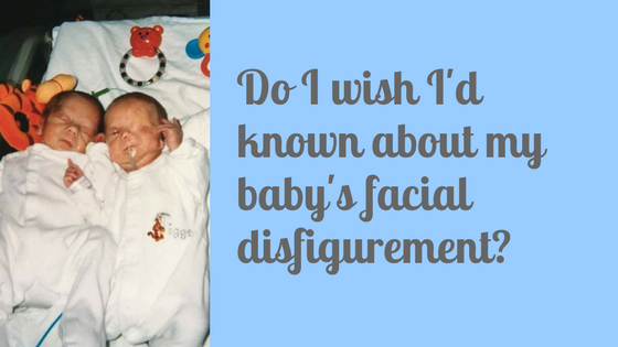 Do I wish I'd known about my baby's facial disfigurement?