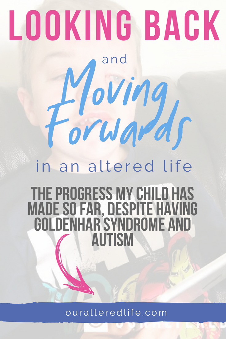 Looking at how my son, who has autism and Goldenhar Syndrome, has made so much progress in life! #Goldenhar #autism