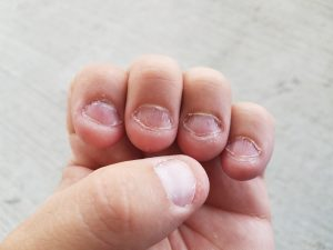 nails bitten and chewed